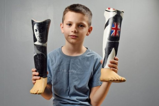 Young Eminem fan gets image of rapper on his prosthetic legs and something brilliant happens
